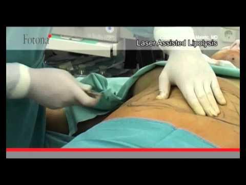 Lopération de la varicosité des veines sur les pieds par le laser