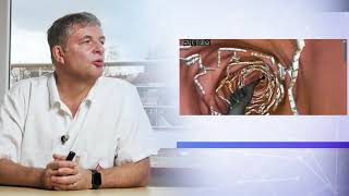 Netradiční průběh léčby pacienta po infarktu myokardu s mnohočetným postižením věnčitých tepen