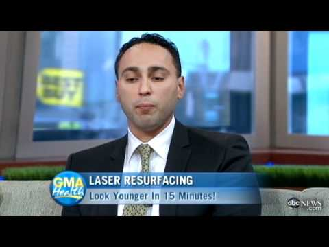 Fraxel Laser Resurfacing – Good Morning America