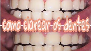 Como Clarear Os Dentes Em Casa ฟร ว ด โอออนไลน ด ท ว ออนไลน