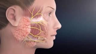 Parotid Surgery Animation | Overview of Minimally Invasive Parotidectomy