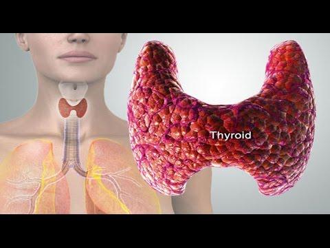 Video Thyroid- थाईराइड की बीमारी को कैसे पहचाने? लक्षण, उपचार, नुस्खे और  बचाव के उपाय