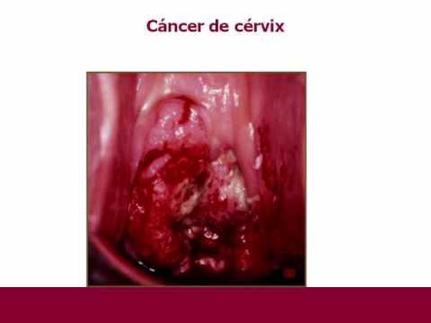 Frazione ASD cancro alla prostata 2