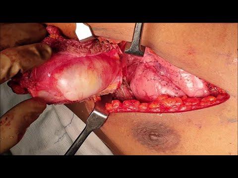 Mięsak kości (żebra) - resekcja fragmentu ściany klatki piersiowej