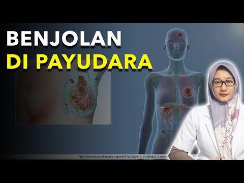 Vestibular papillomatosis vs condyloma