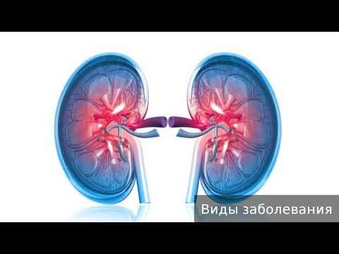 Почему таблетки от гипертонии не снижают давление