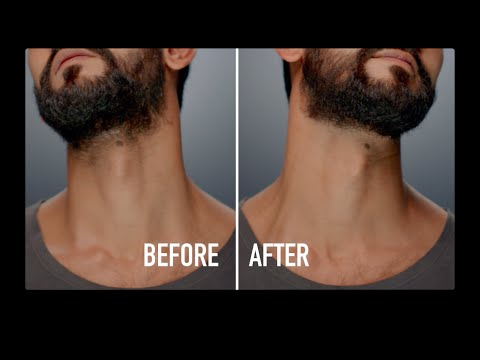 How to Tame the Neck Beard