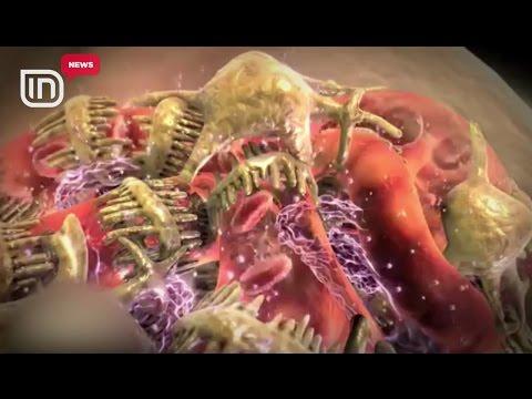 Hipertensionit cili hapi