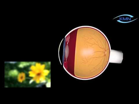 Könyv a látás tesztelésére