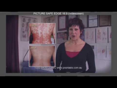 Atopitchesky la dermatite chez les chats les symptômes