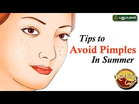 Tips to Avoid Pimples In Summer | Azhagukalai For Beauty 04-04-2017 Puthuyugam Tv