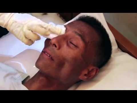 Tratamentul hipermetropiei legat de vârstă