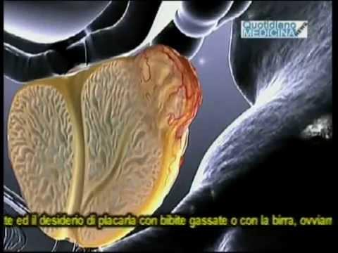 Un tiro da cancro alla prostata