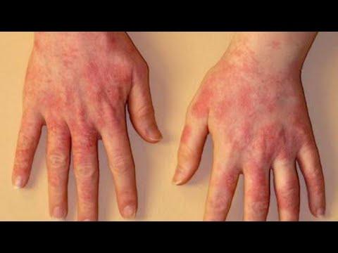 Le psoriasis des ongles que traiter les rappels