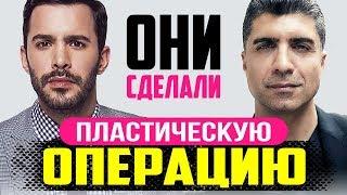 Plastic surgery of Turkish male actors | ENG Subtitles