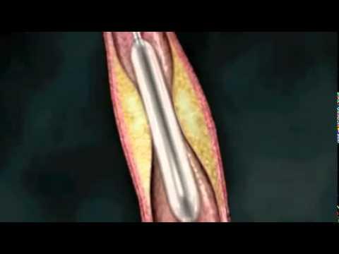 Angioplastia coronaria Implante de un stent en las arterias del corazón
