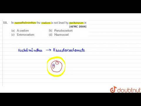Schistosomiasis liver histology