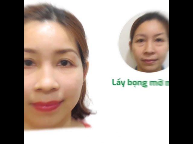 video thẩm mỹ uy tín đà nẵng