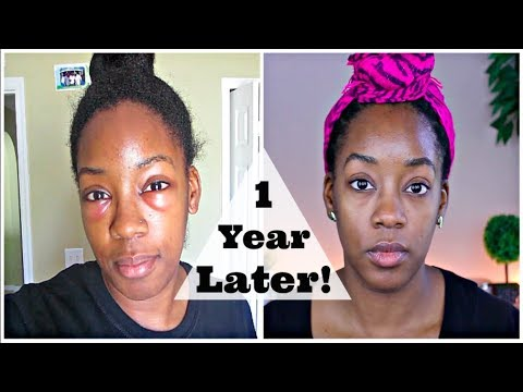 Lower Blepharoplasty Update... 1 Year Later!