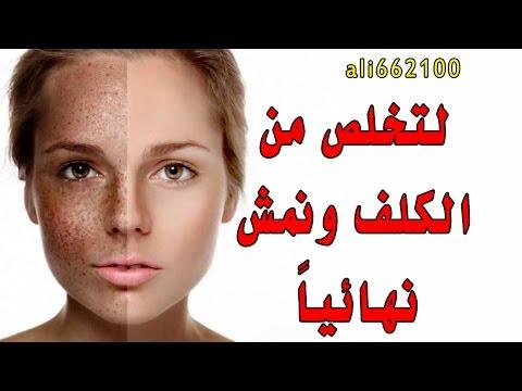 Paglabag ng balat pigmentation puting spots