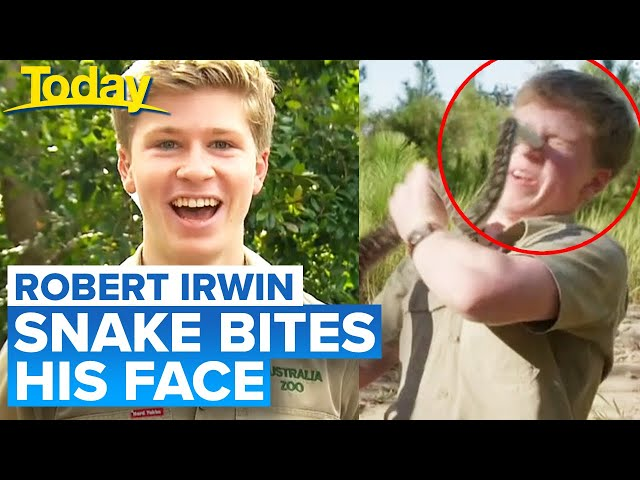 Robert Irwin bitten on face by snake | Today Show Australia