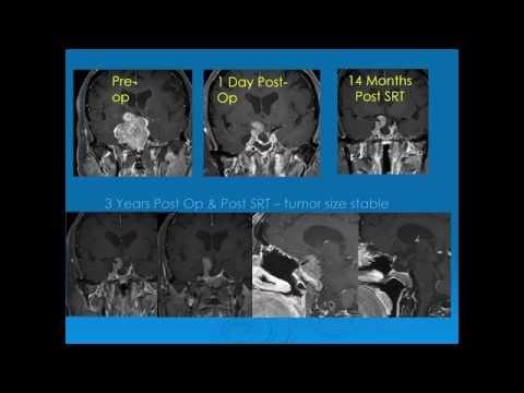 Akut prosztatagyulladás és adenoma tünetei