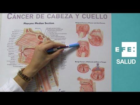 Gastric cancer vegetarian