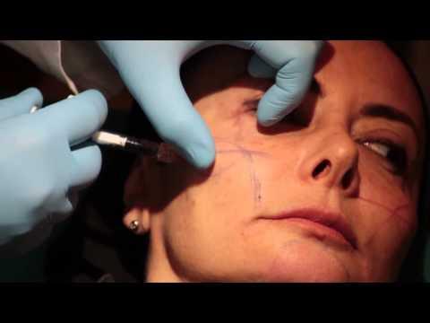 Kiefergelenk Dysfunktion und Behandlung
