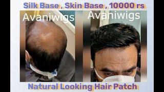 Skin Base Men hair wig in delhi