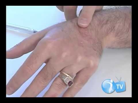 Medicina o eczema molhado conveniente