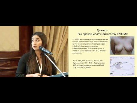 Дисгормональная железистая гиперплазия предстательной железы