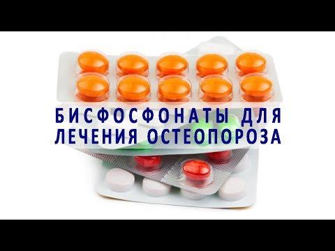 Бисфосфонаты – лекарства для лечения остеопороза