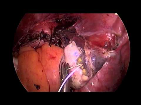 1100 gram 2 Incision Hysterectomy with Morcellation