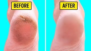10 Natural Home Remedies for Silky Smooth Feet
