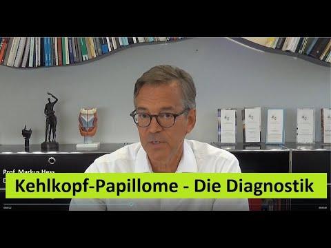 Papilloma on the neck