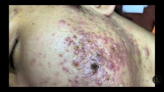 ACNE TREATMENT FOR Mạnh past 2 (45) | Loan Nguyen