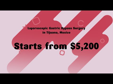 Laparoscopic-Gastric-Bypass-Surgery-in-Tijuana-starts-from-5200
