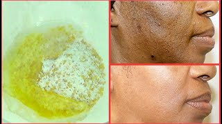 NATURAL EXFOLIATING FACIAL SCRUB FOR CLEARING BLACKHEADS, DARK SPOTS, DULL DRY SKIN, GET CLEAR SKIN