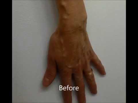 La varicosité le traitement avec le laser toula