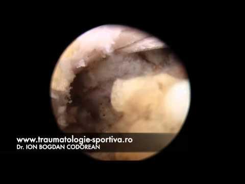 Dureri de umăr și hematom
