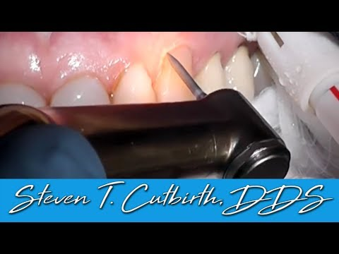 Composite Restoration of Gumline Decay - Dental Minute with Steven T. Cutbirth, DDS