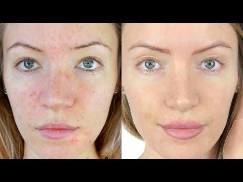 Cosmetics laban spot edad spot sa mukha