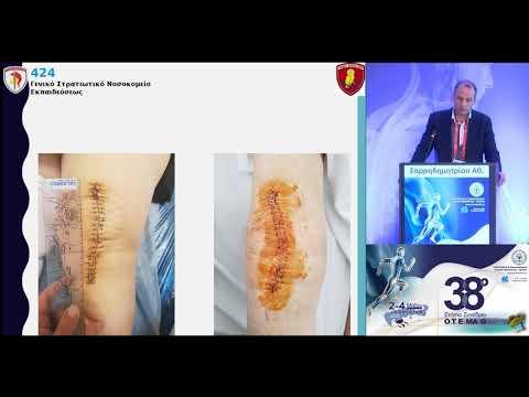 Σαρρηδημητρίου Αθ. - Προεγχειρητική κάλυψη με μονάδες αίματος πριν την ολική αρθροπλαστική γόνατος