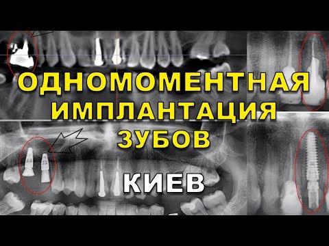 Одномоментная имплантация зубов за один день под ключ Киев