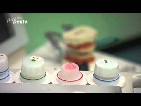 Die Thrombophlebitis die Operation der Preis der Billardstöcke