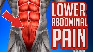Lower Abdominal Pain - Common Causes & Symptoms