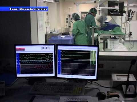2 laipsnio hipertenzijos impulsas
