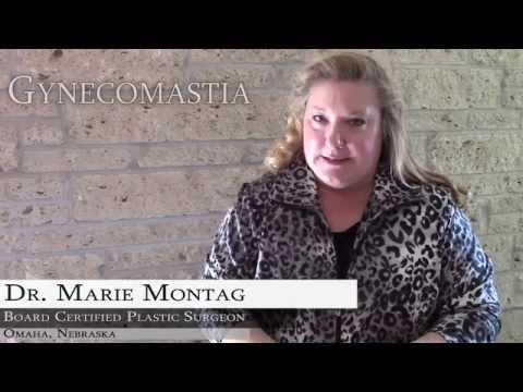 Gynecomastia: Treatment Options
