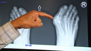 Bunions – Common Causes and Treatment Options