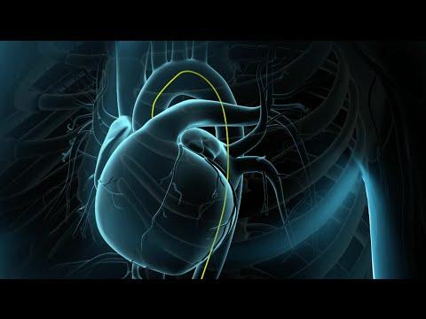 Mi vénás pulmonális hipertónia